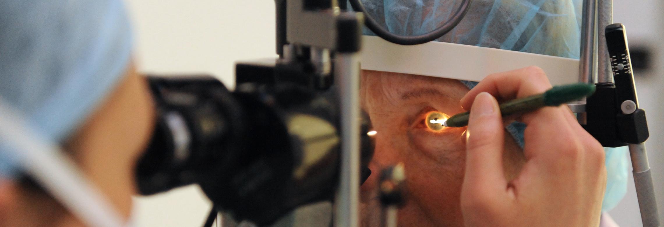 Le chirurgien marque l'œil du patient pour l'opération de la myopie